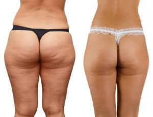 Cellulite-before-and-after-1000