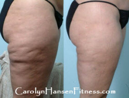 Suffering With Cellulite?